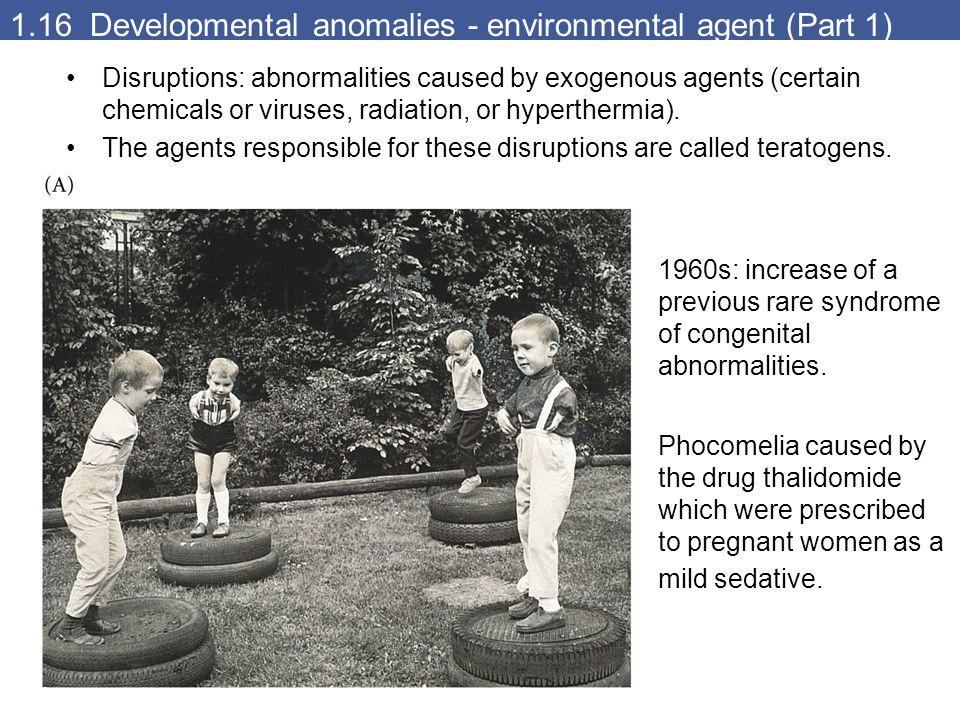 1.16 Developmental anomalies - environmental agent (Part 1)