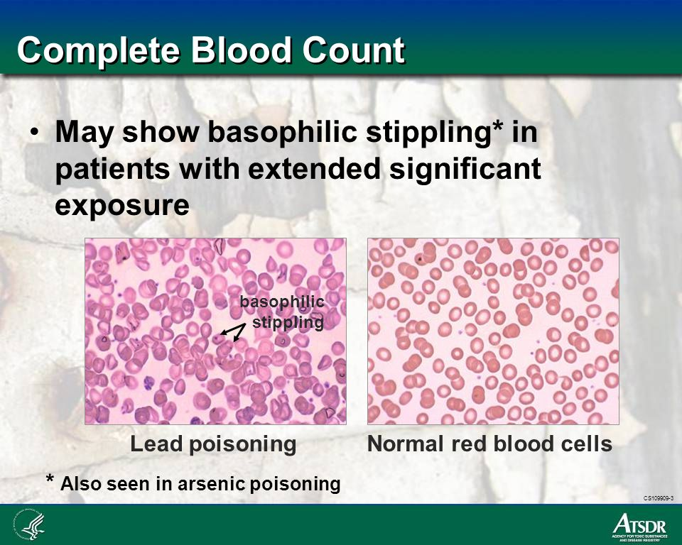 Complete Blood Count May show basophilic stippling* in patients with extended significant exposure.
