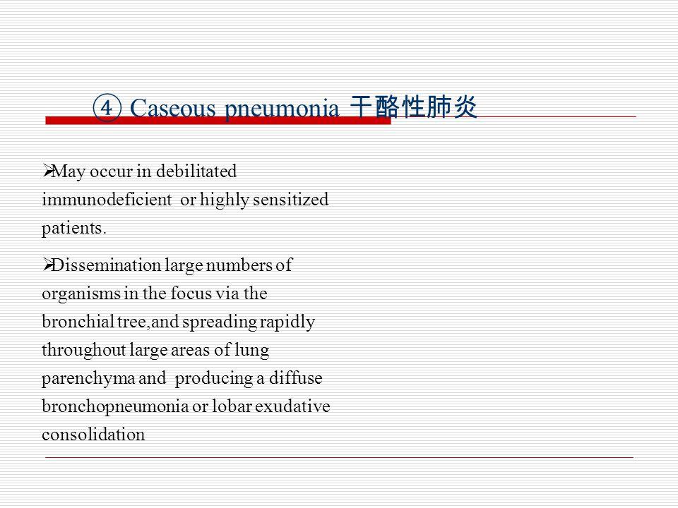 ④ Caseous pneumonia 干酪性肺炎