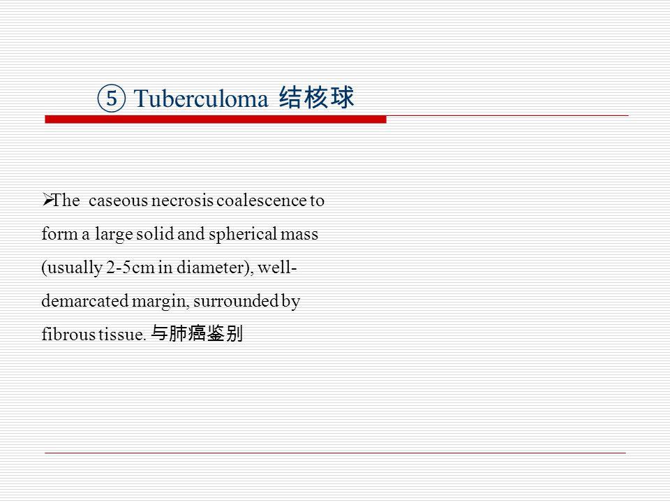 ⑤ Tuberculoma 结核球