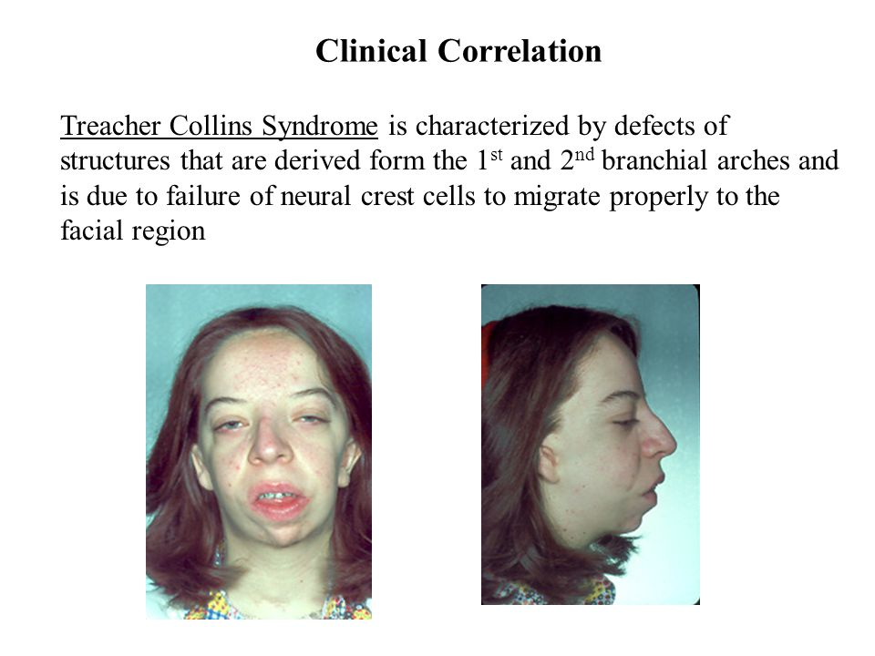 Clinical Correlation Treacher Collins Syndrome is characterized by defects of. structures that are derived form the 1st and 2nd branchial arches and.