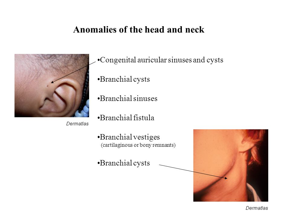 Anomalies of the head and neck