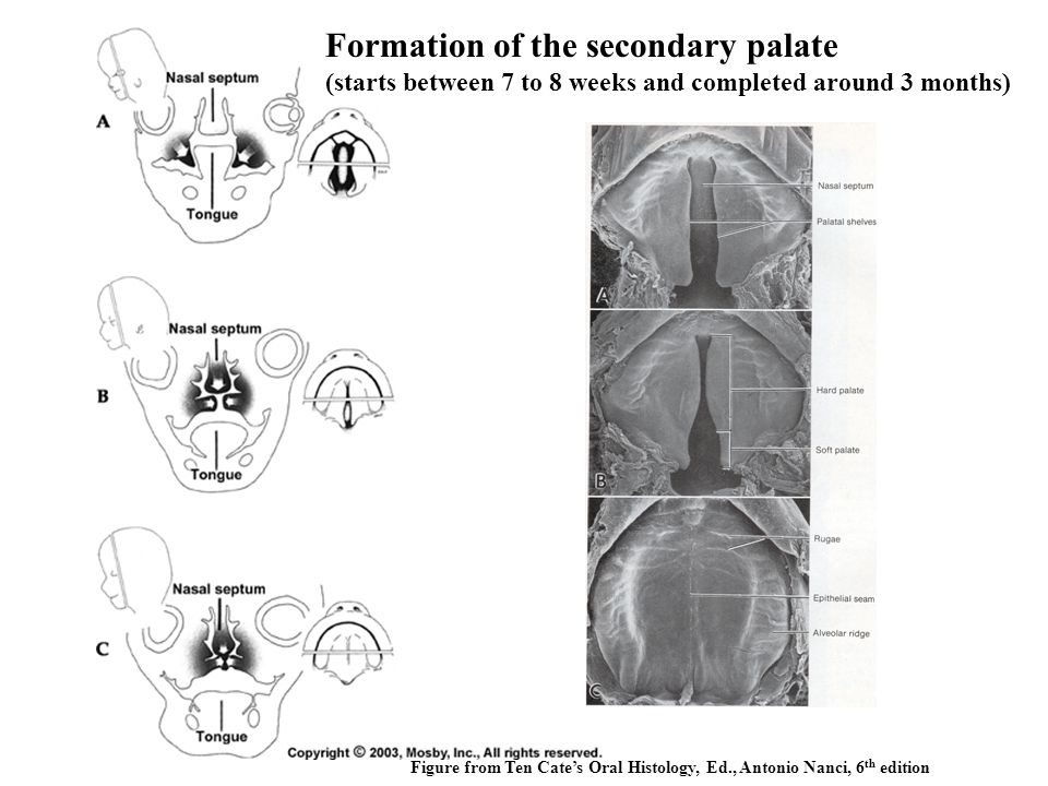 Formation of the secondary palate