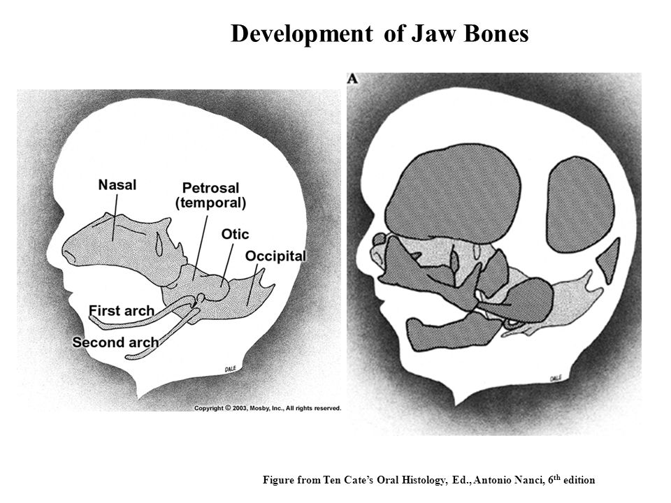 Development of Jaw Bones