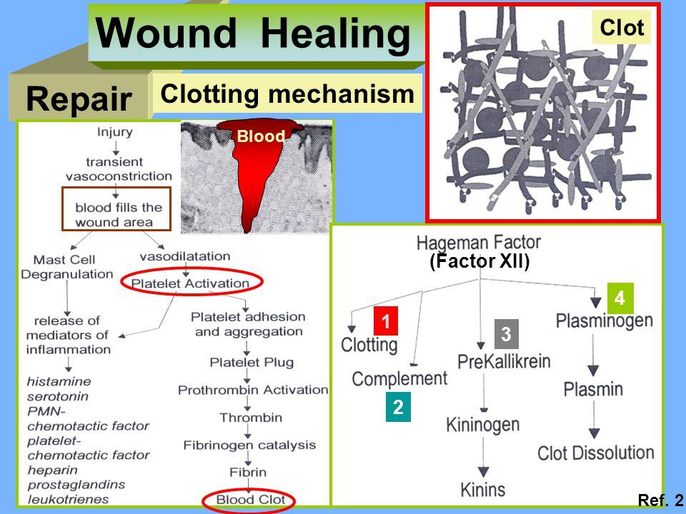 Wound Healing Repair Clotting mechanism Clot (Factor XII) 4 1 3 2
