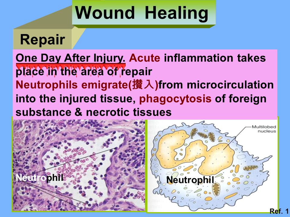 Wound Healing Repair One Day After Injury. Acute inflammation takes