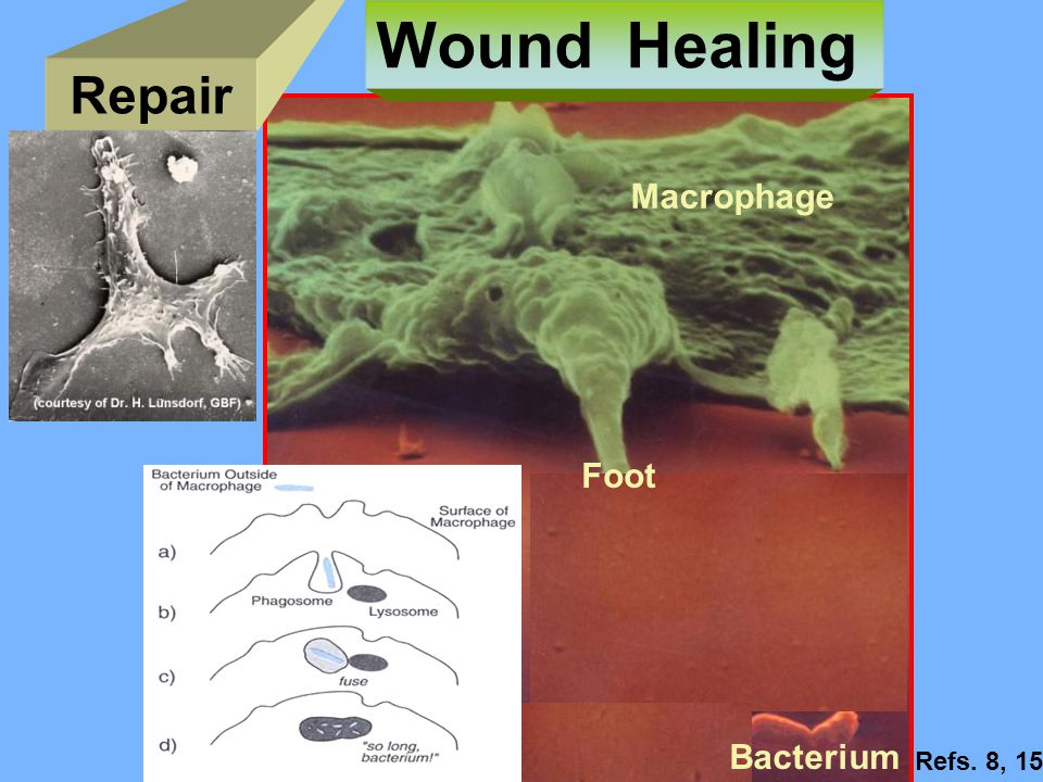Wound Healing Repair Macrophage Foot Bacterium Refs. 8, 15