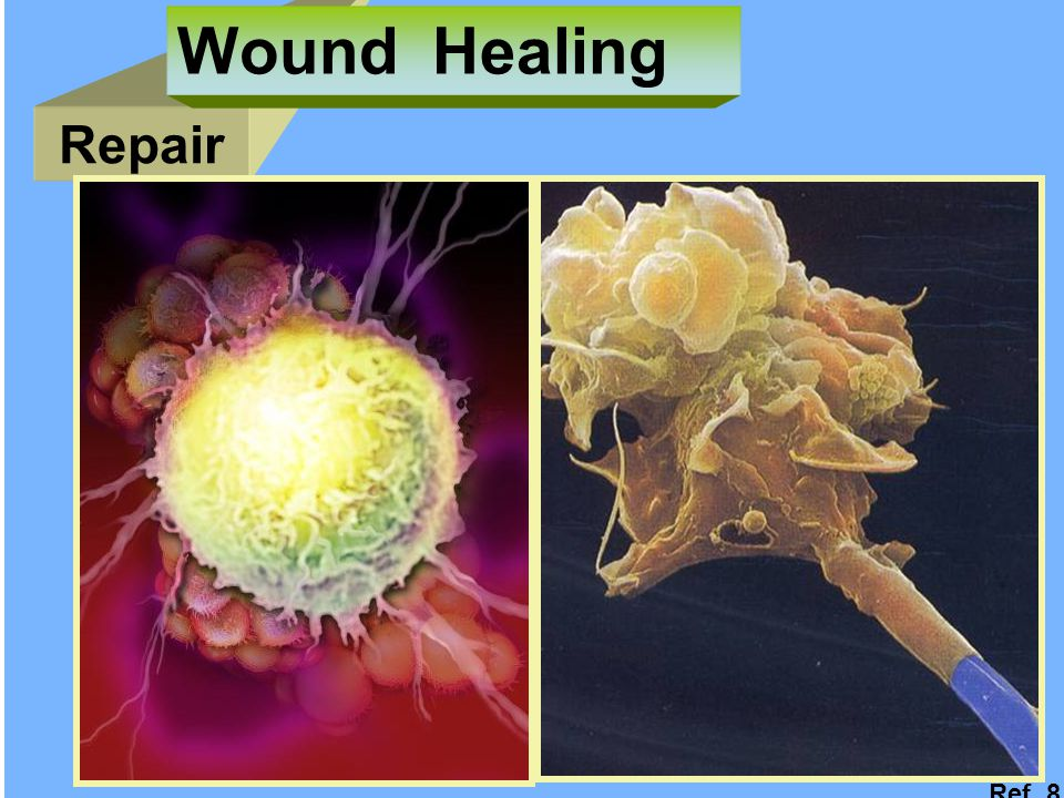 Wound Healing Repair Ref. 8