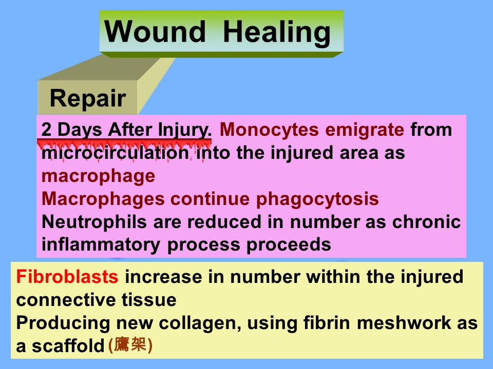 Wound Healing Repair 2 Days After Injury. Monocytes emigrate from