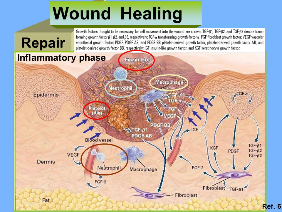 Wound Healing Repair Inflammatory phase Ref. 6