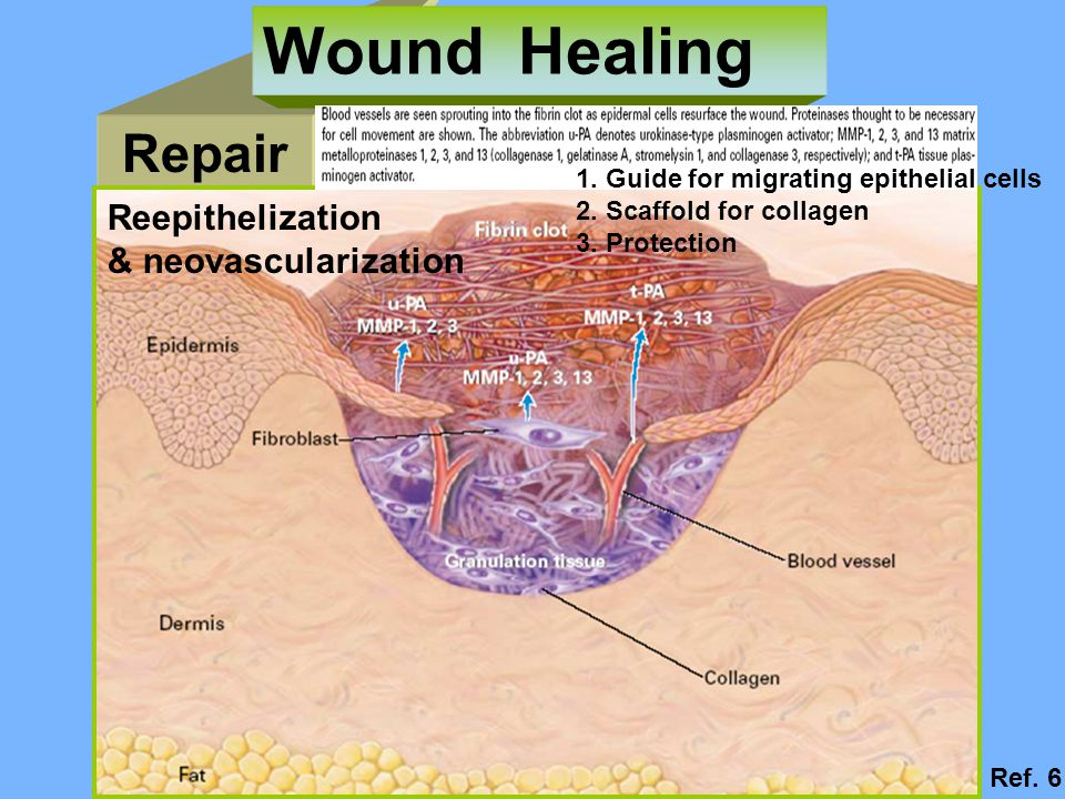 Wound Healing Repair Reepithelization & neovascularization