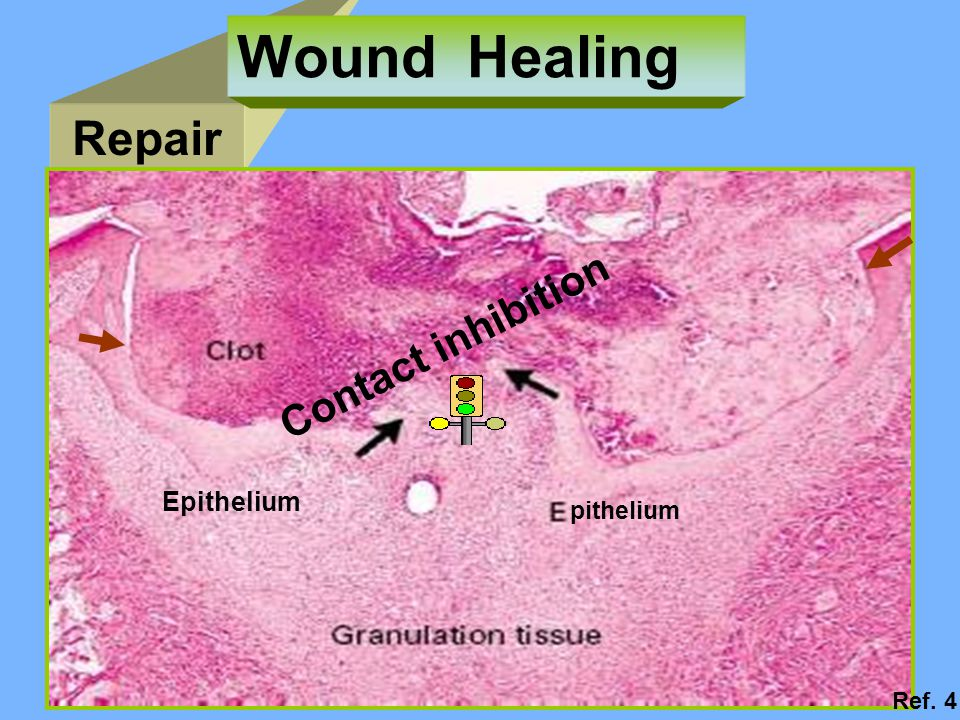 Wound Healing Repair pithelium Contact inhibition Epithelium Ref. 4