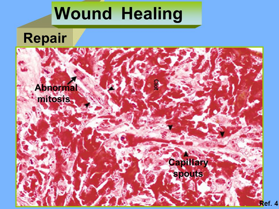Wound Healing Repair Abnormal mitosis Capillary spouts Ref. 4