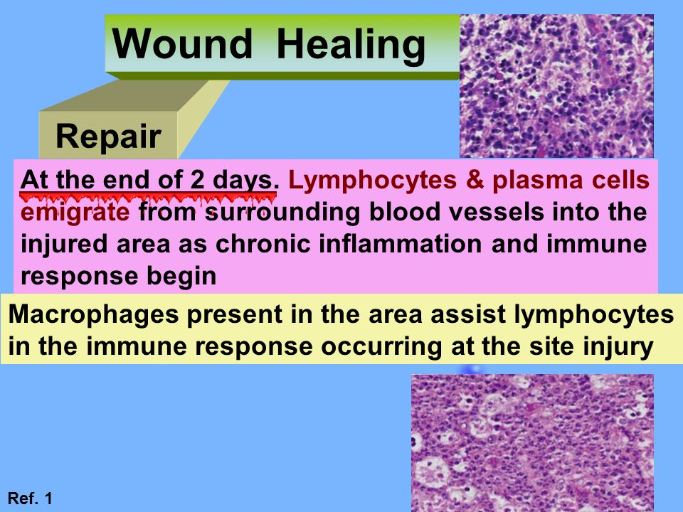 Wound Healing Repair At the end of 2 days. Lymphocytes & plasma cells