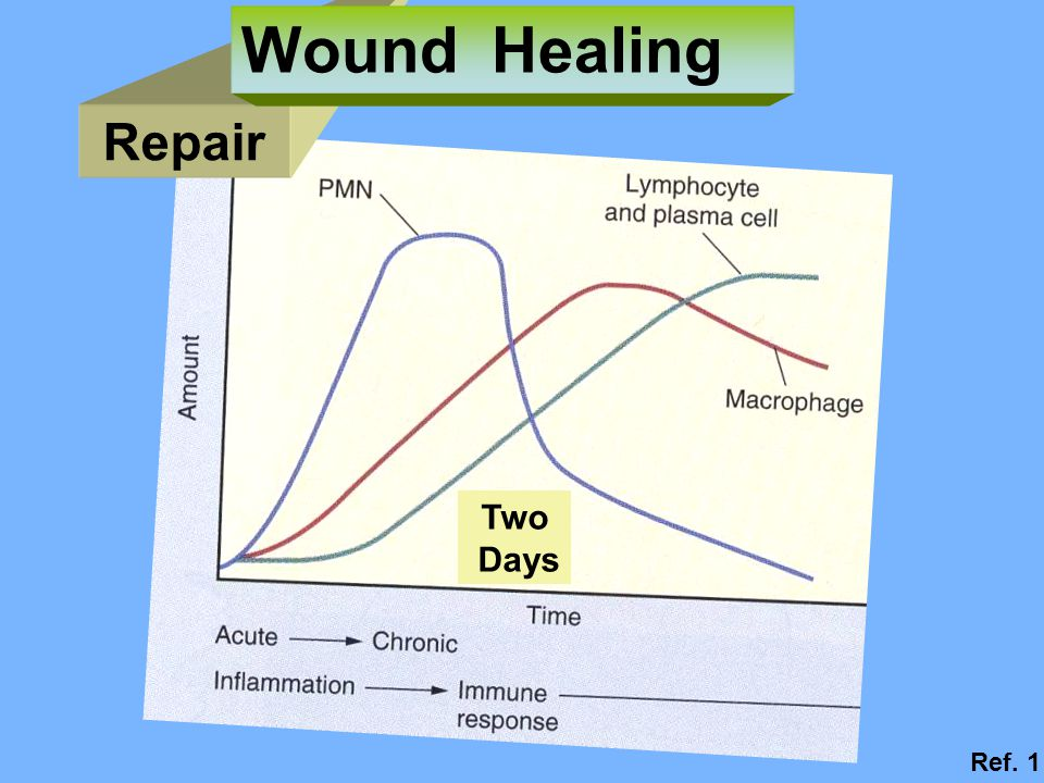 Wound Healing Repair Two Days Ref. 1