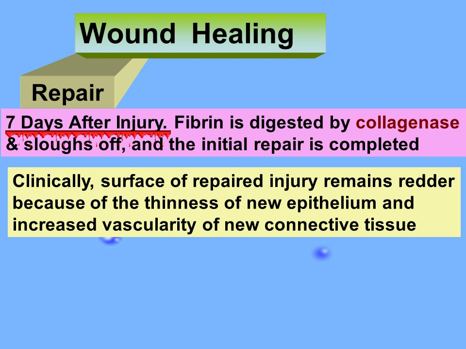 Wound Healing Repair. 7 Days After Injury. Fibrin is digested by collagenase. & sloughs off, and the initial repair is completed.