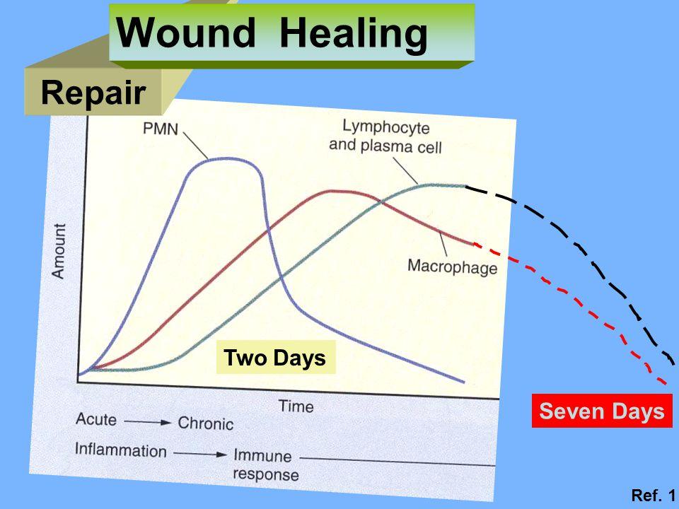 Wound Healing Repair Two Days Seven Days Ref. 1