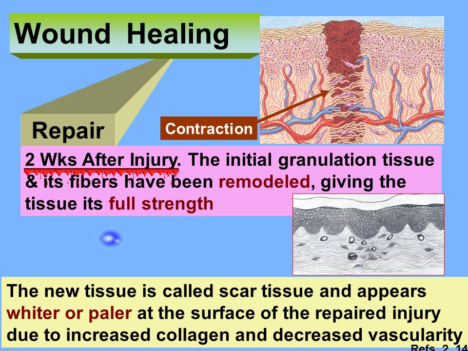 Wound Healing Repair. Contraction. 2 Wks After Injury. The initial granulation tissue. & its fibers have been remodeled, giving the.