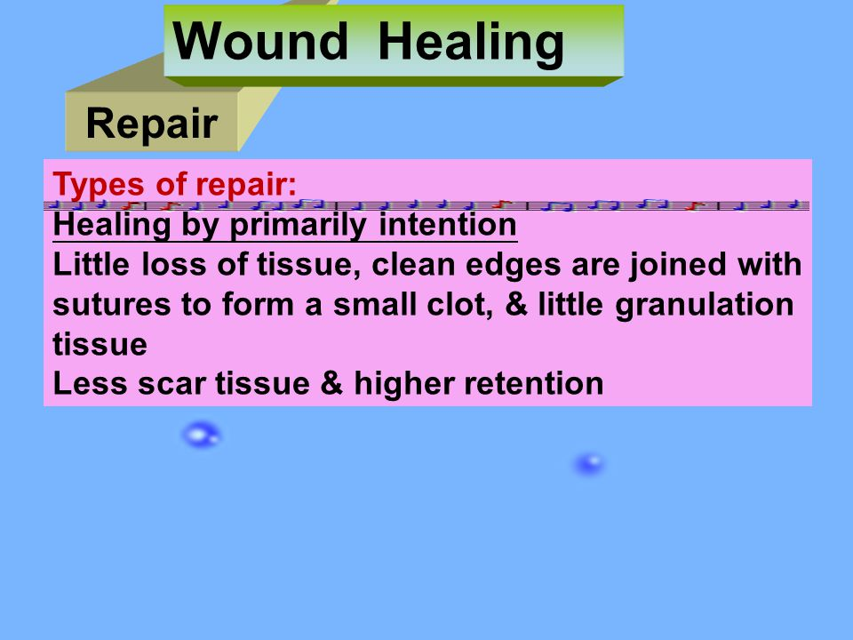 Wound Healing Repair Types of repair: Healing by primarily intention