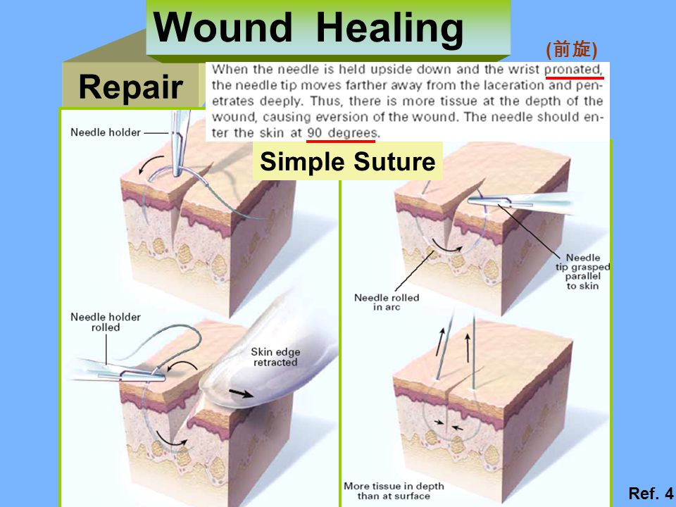 Wound Healing (前旋) Repair Simple Suture Ref. 4