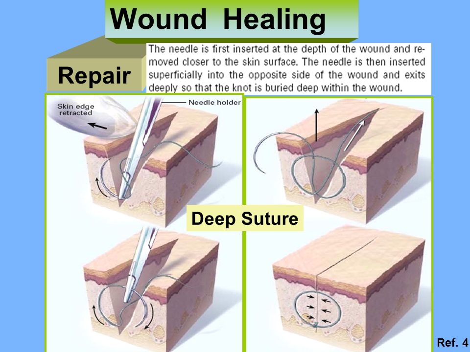 Wound Healing Repair Deep Suture Ref. 4