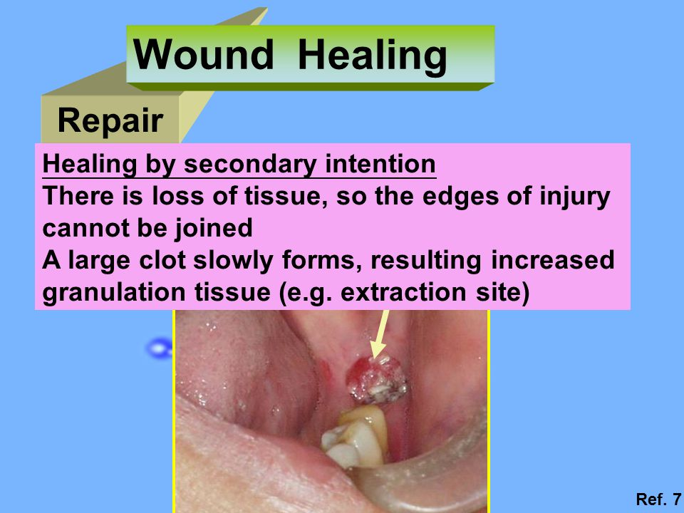 Wound Healing Repair Healing by secondary intention