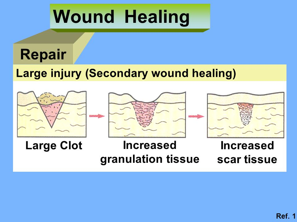 Wound Healing Repair Large injury (Secondary wound healing) Large Clot