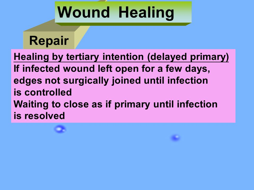 Wound Healing Repair Healing by tertiary intention (delayed primary)