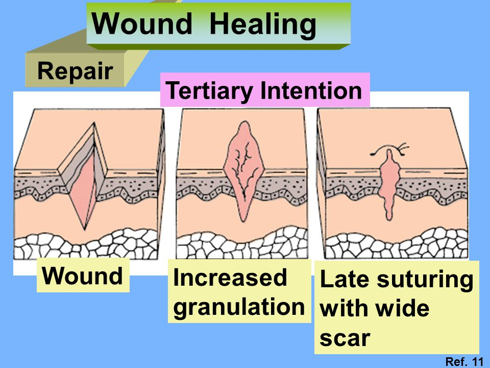 Wound Healing Repair Tertiary Intention Wound Increased Late suturing