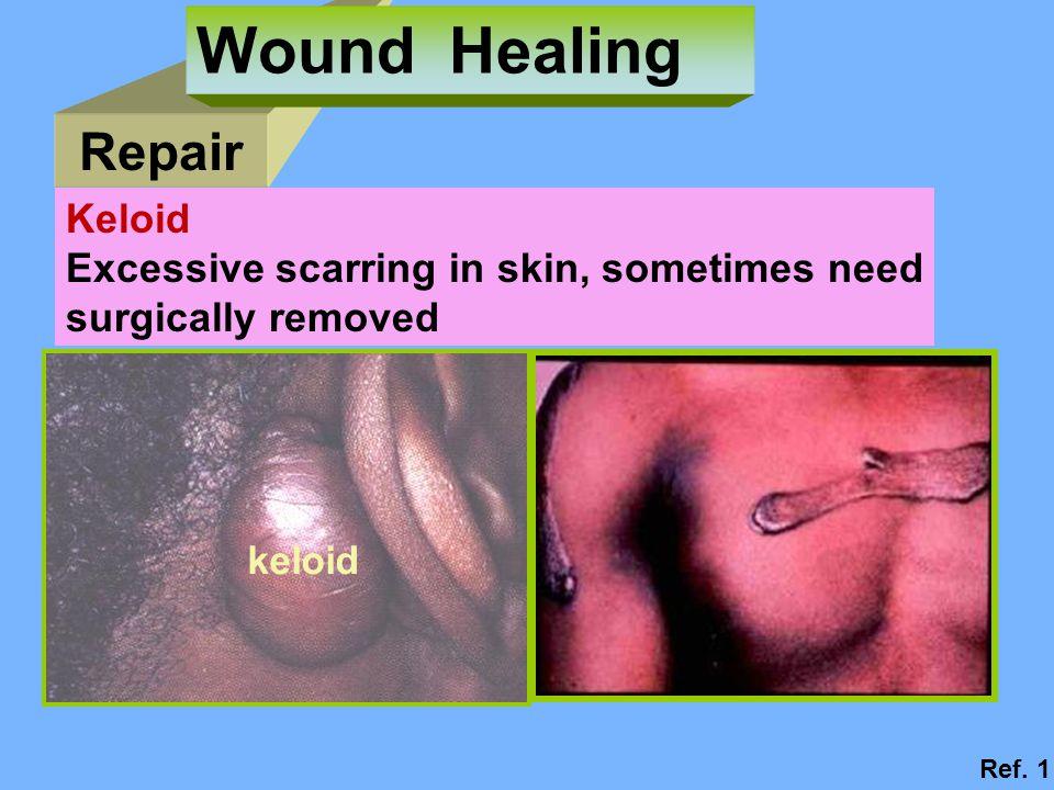 Wound Healing Repair Keloid Excessive scarring in skin, sometimes need