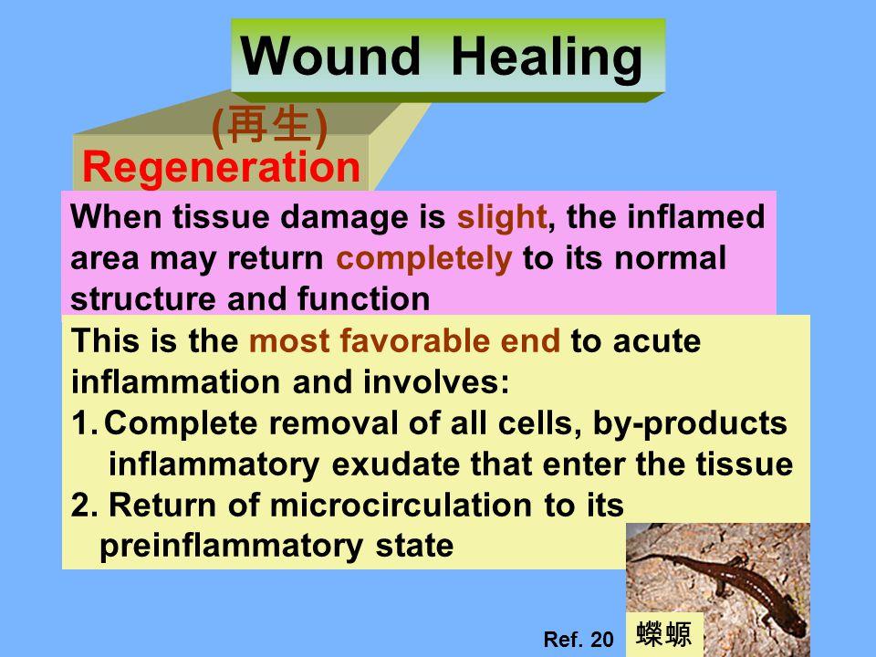 Wound Healing (再生) Regeneration