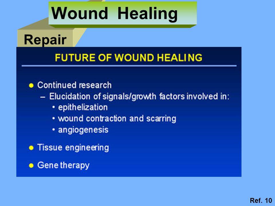 Wound Healing Repair Ref. 10