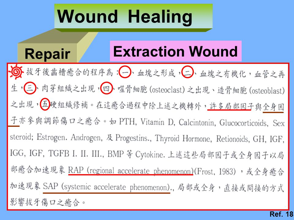 Wound Healing Extraction Wound Repair Ref. 18