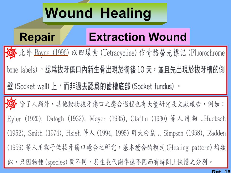 Wound Healing Repair Extraction Wound Ref. 18