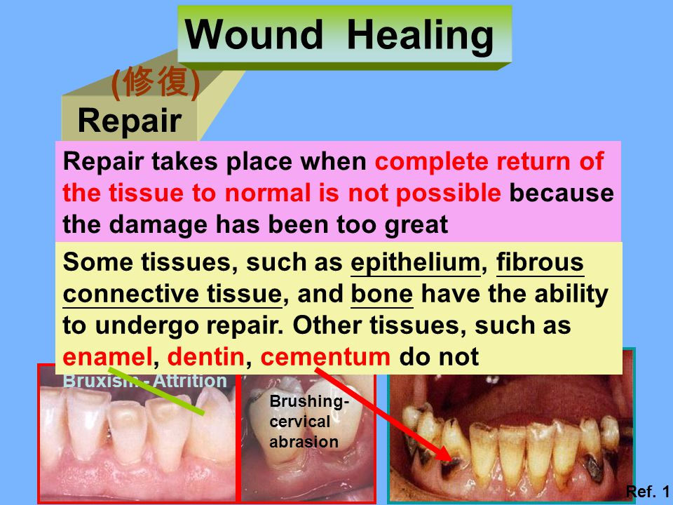 Wound Healing (修復) Repair Repair takes place when complete return of