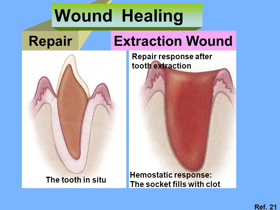 Wound Healing Repair Extraction Wound Repair response after