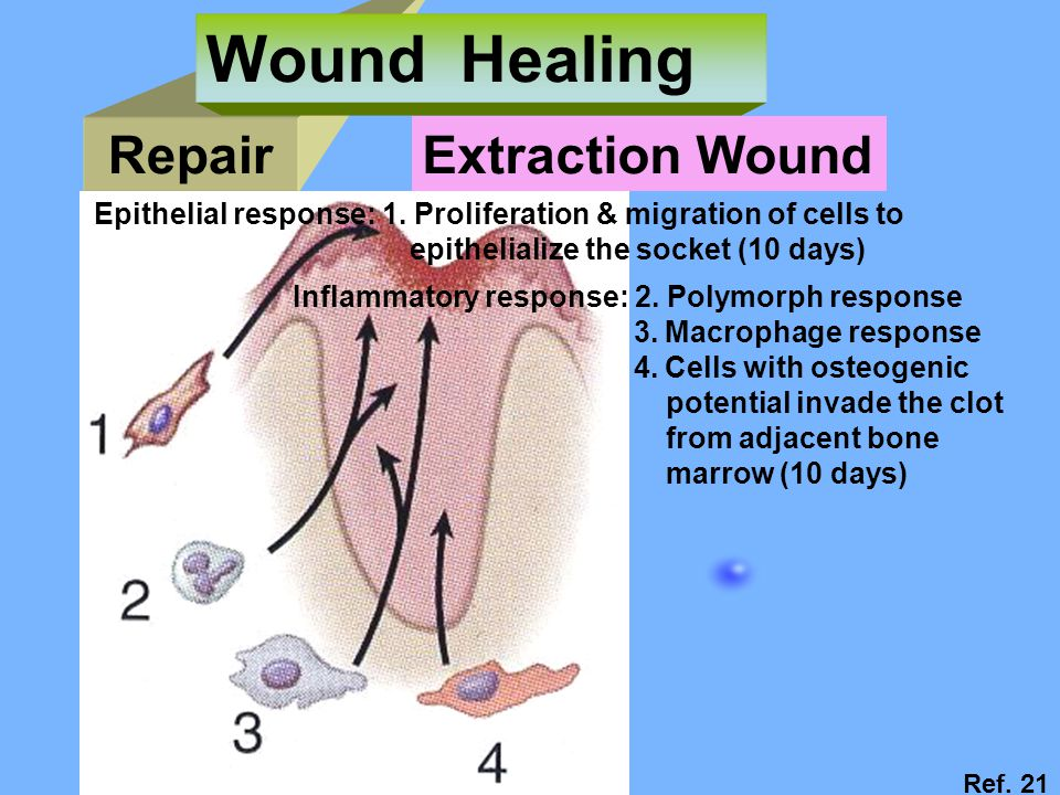Wound Healing Repair Extraction Wound