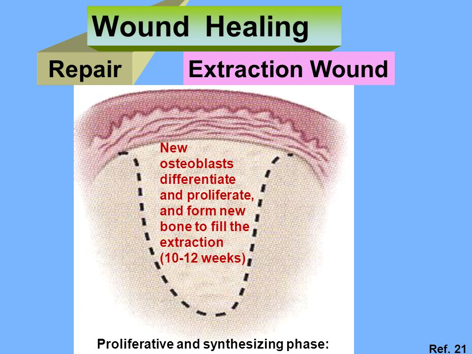 Wound Healing Repair Extraction Wound New osteoblasts differentiate