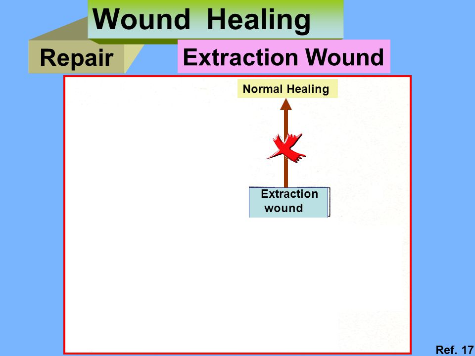 Wound Healing Repair Extraction Wound Normal Healing Extraction wound