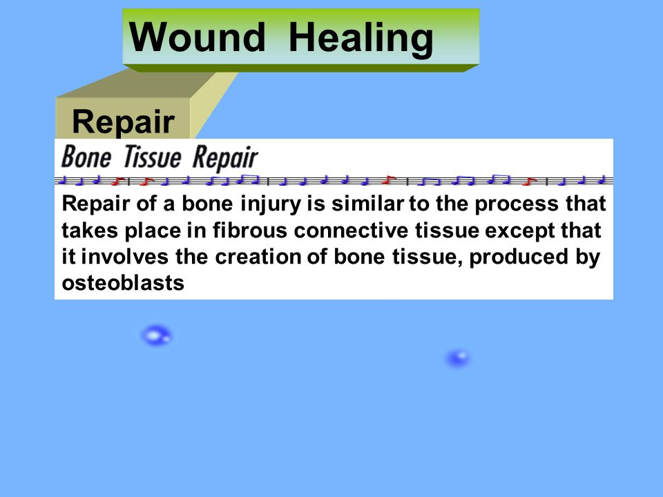 Wound Healing Repair. Repair of a bone injury is similar to the process that. takes place in fibrous connective tissue except that.