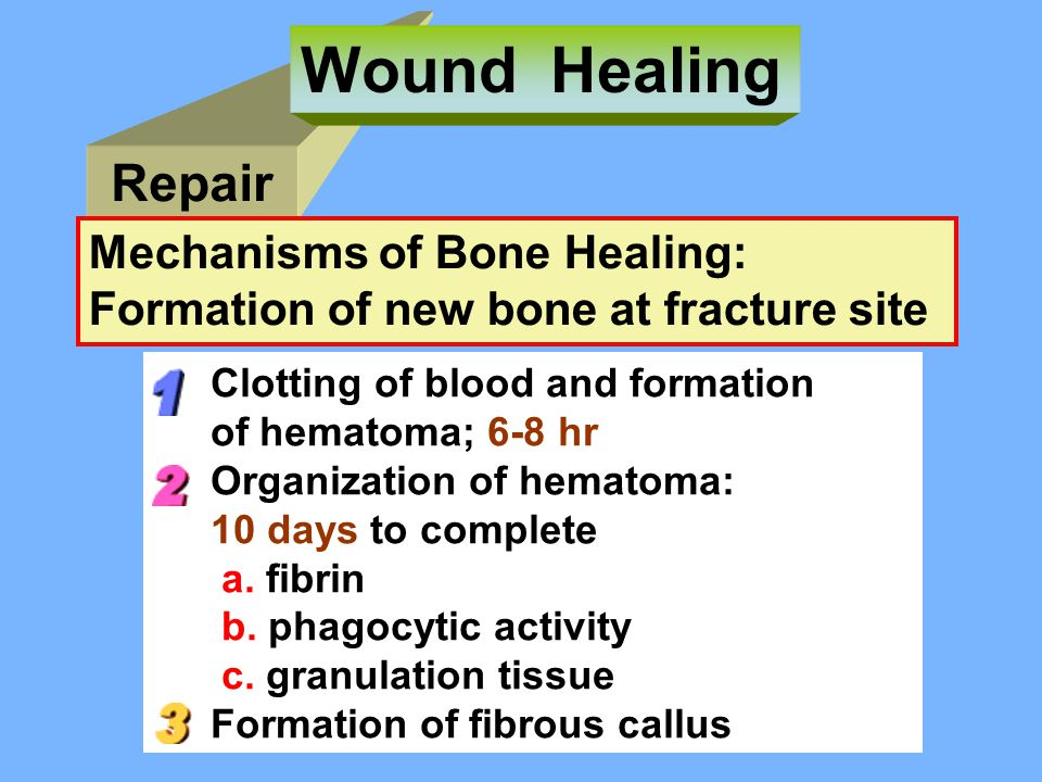 Wound Healing Repair Mechanisms of Bone Healing: