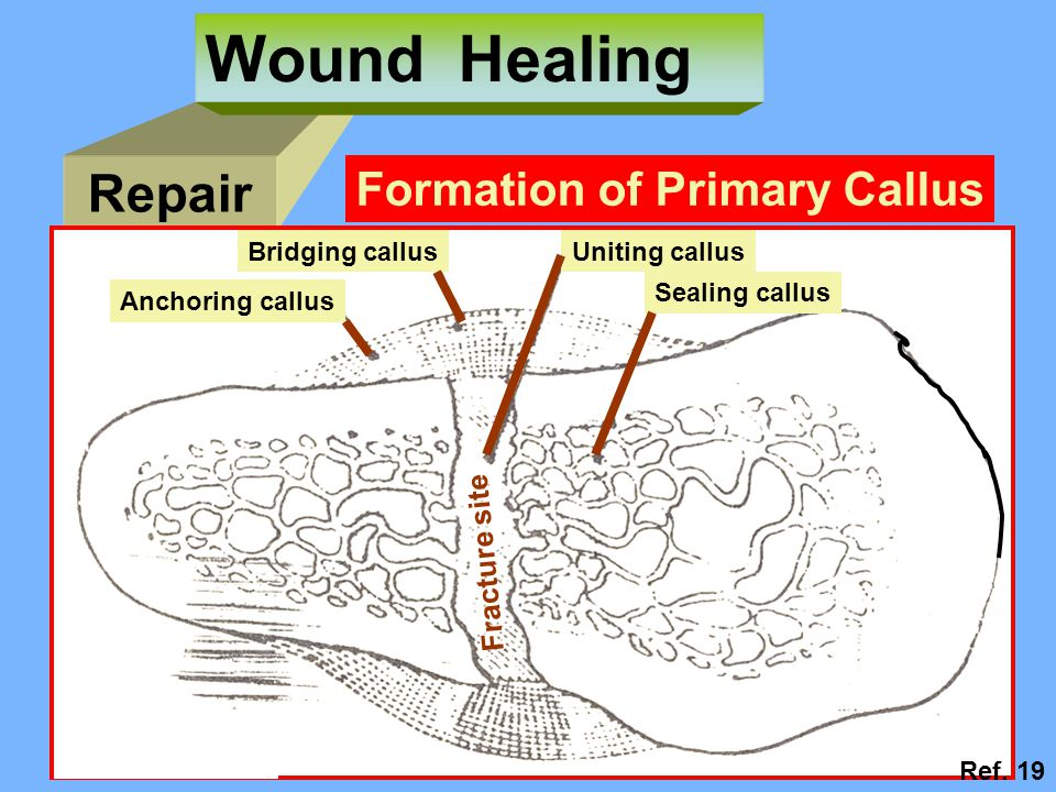 Wound Healing Repair Formation of Primary Callus Fracture site