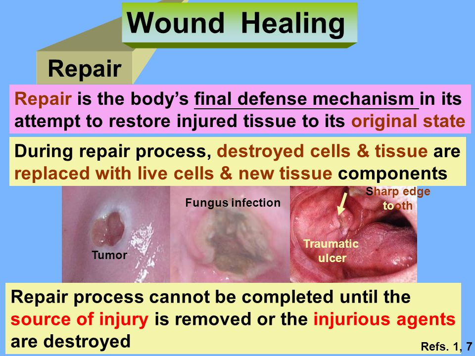 Wound Healing Repair. Repair is the body's final defense mechanism in its. attempt to restore injured tissue to its original state.
