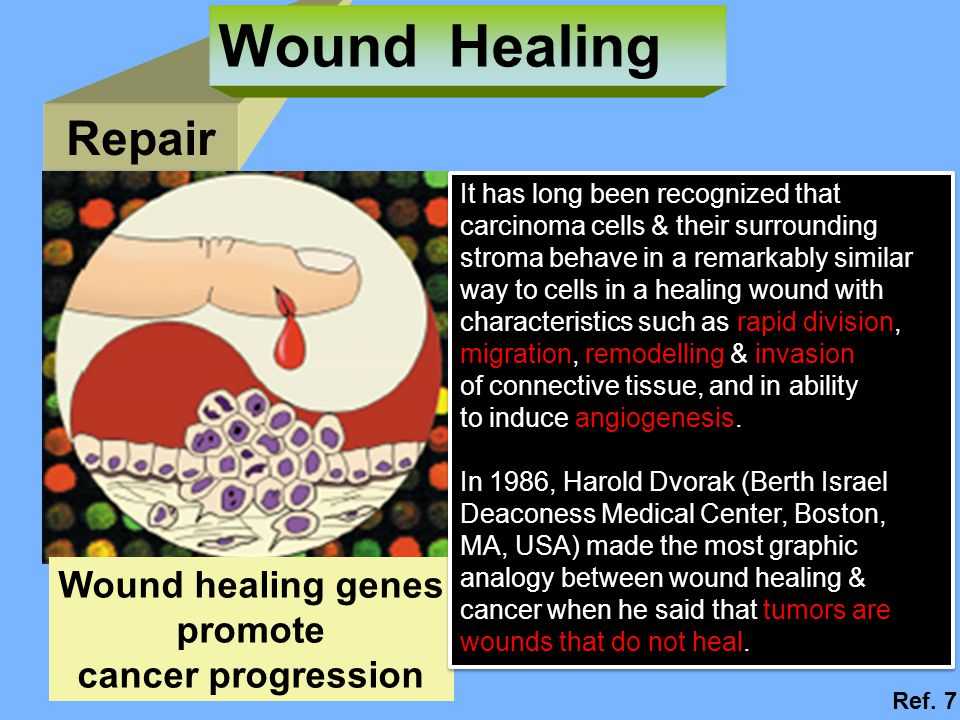 Wound Healing Repair Wound healing genes promote cancer progression
