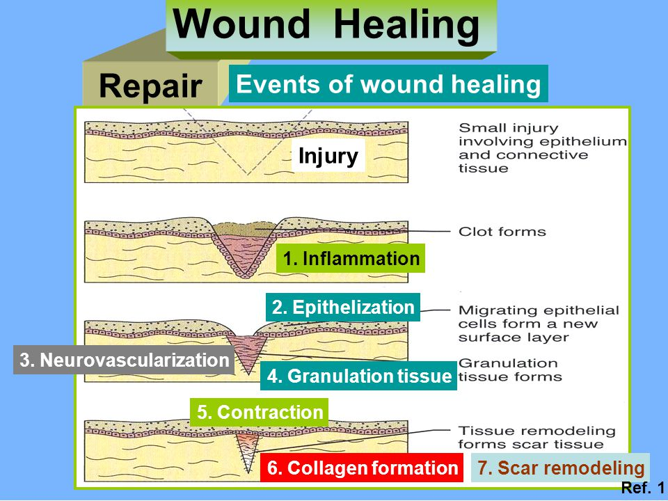 Wound Healing Repair Events of wound healing Injury 1. Inflammation
