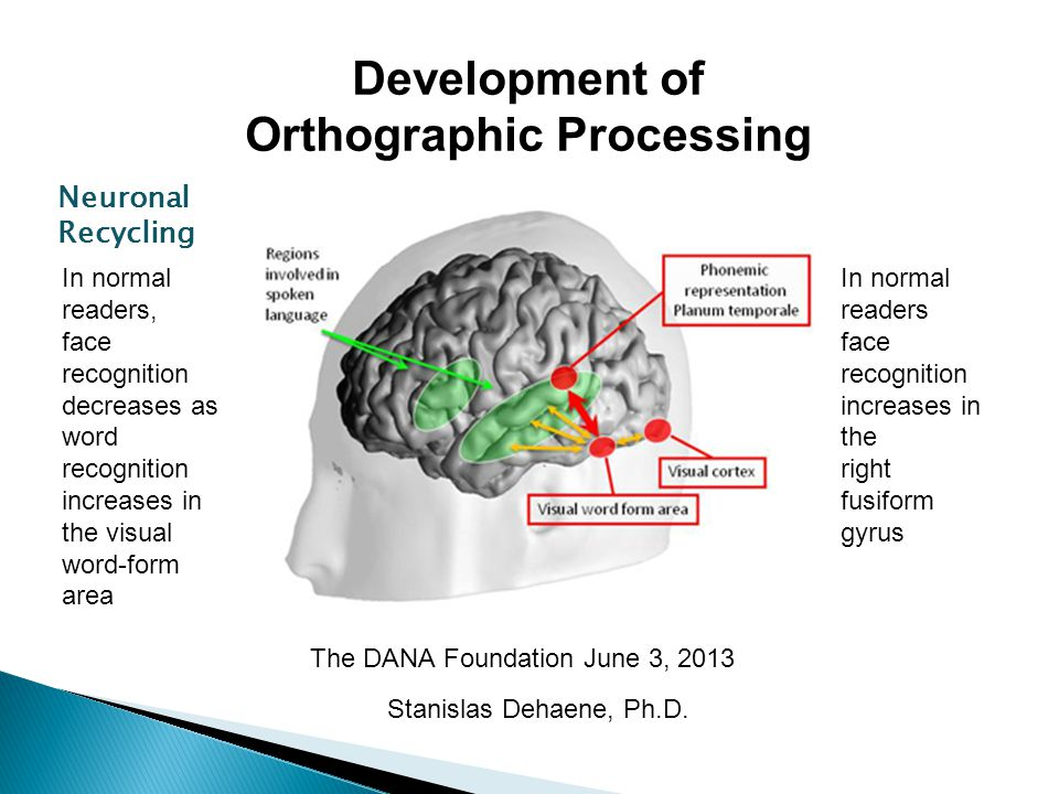 Orthographic Processing
