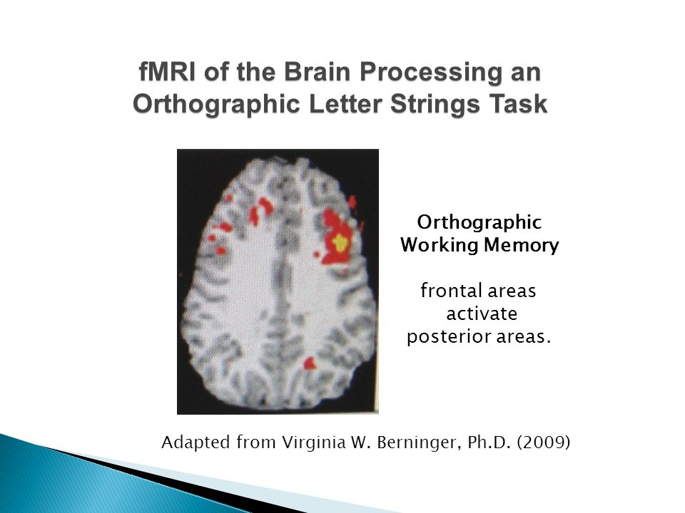fMRI of the Brain Processing an Orthographic Letter Strings Task