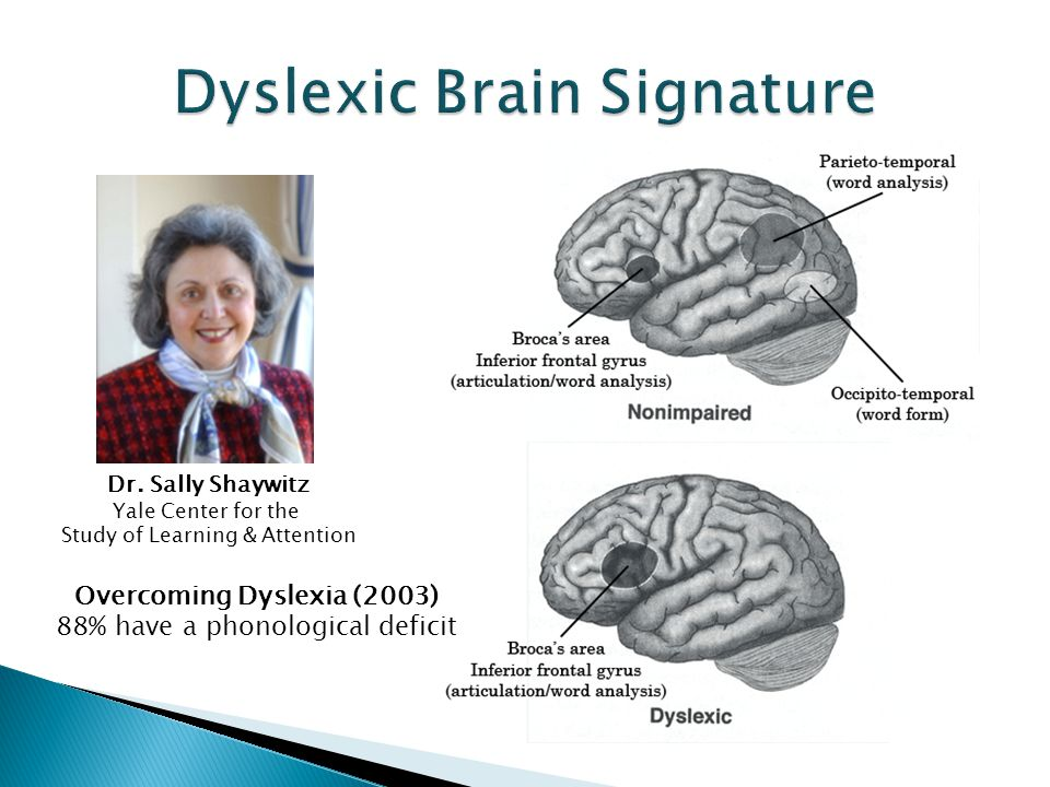 Dyslexic Brain Signature
