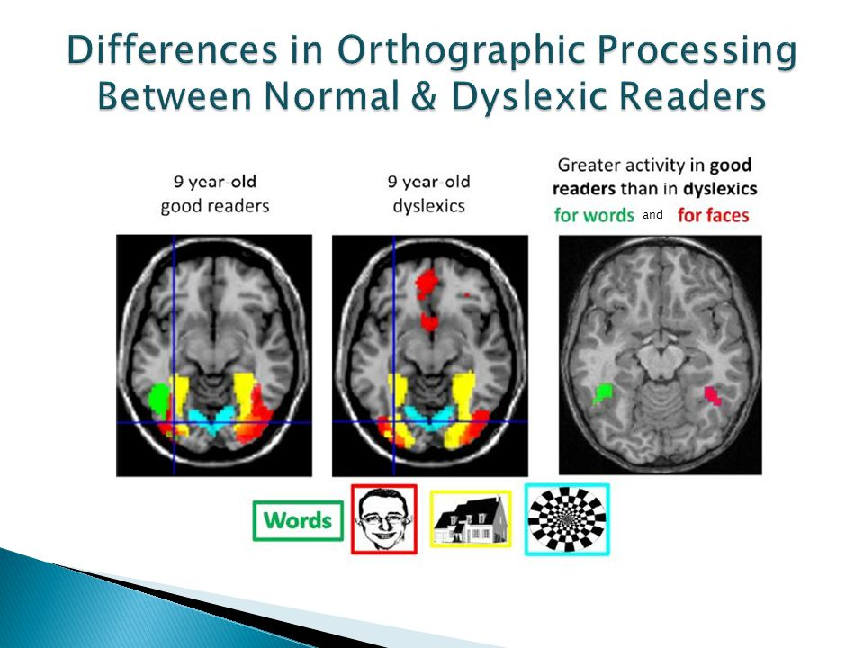Differences in Orthographic Processing Between Normal & Dyslexic Readers