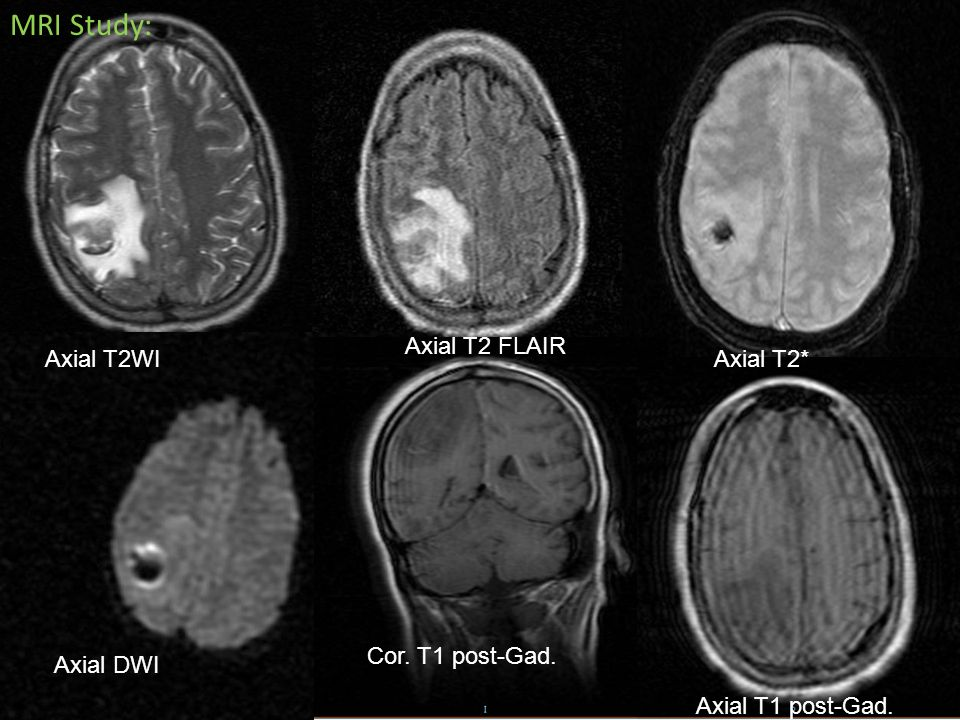 MRI Study: Axial T2 FLAIR Axial T2WI Axial T2* Cor. T1 post-Gad.
